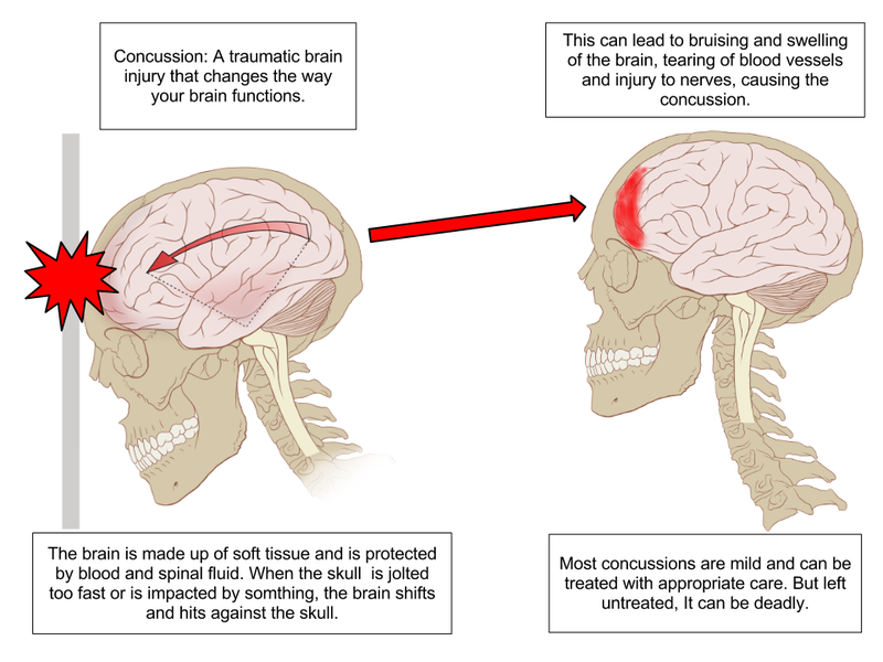 Concussion awareness has increased to prevent diagnose them the concussions are a serious injury that harm many high school athletes each year the diagram ccuart Images