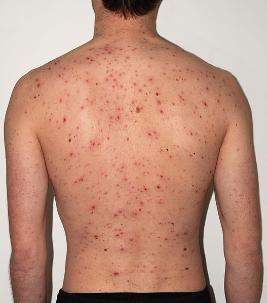 The chickenpox virus causes a rash over the the back of this 30-year-old man. This is on the fifth day since the rashs development. The mans pocks are starting to crust over.